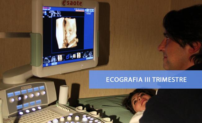Ecografia III Trimestre
